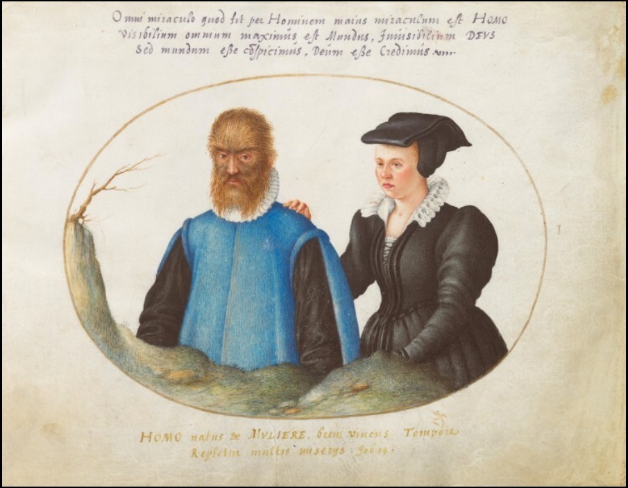 'Beauty and the Beast': The Real, Historic Couple Who May Have Inspired A Tale as Old as Time